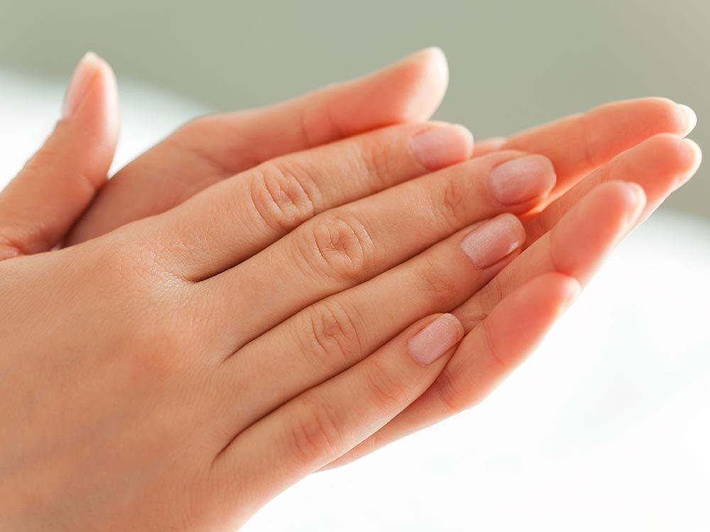 Les maladies prédites par les mains: hyperhidrose.