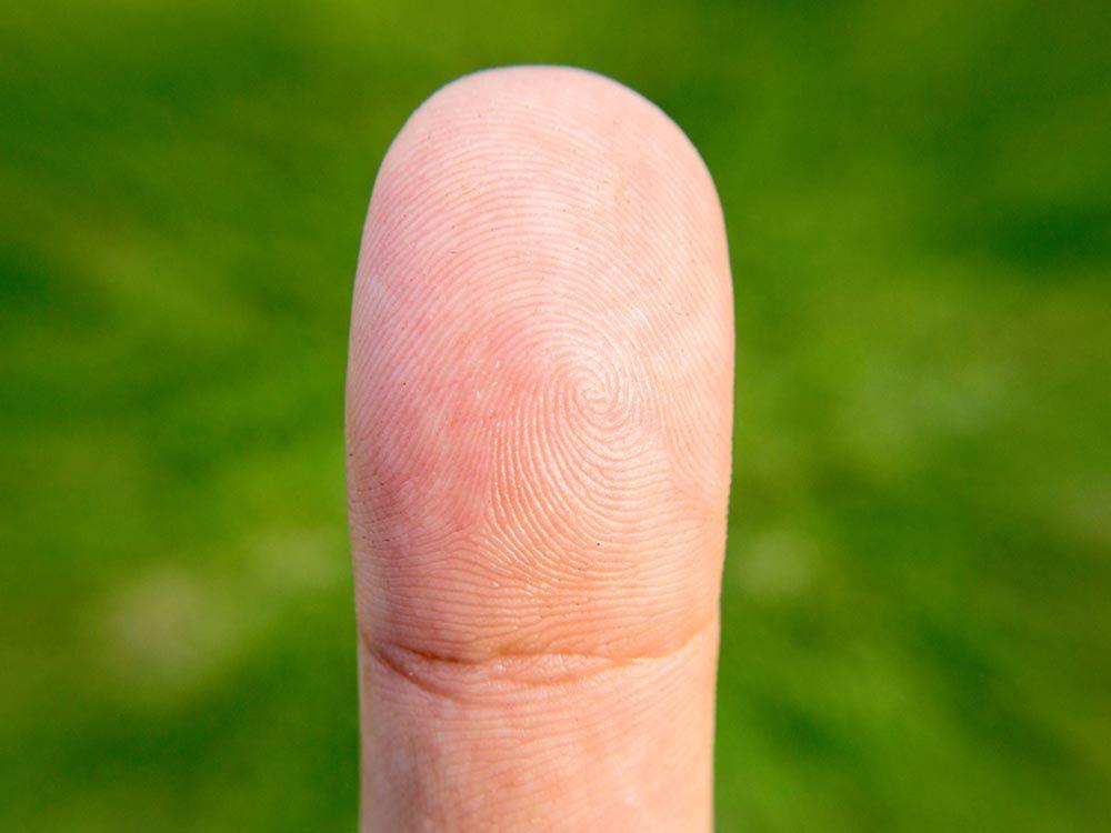 Les maladies prédites par les mains: l'hypertension artérielle.