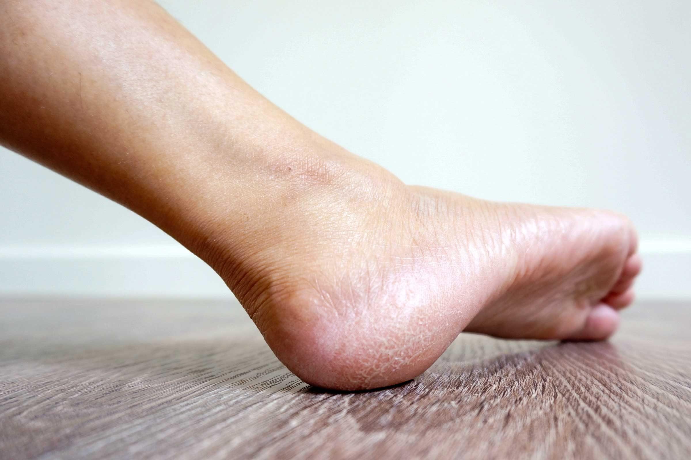 signes-manque-proteine-peau-rugueuse