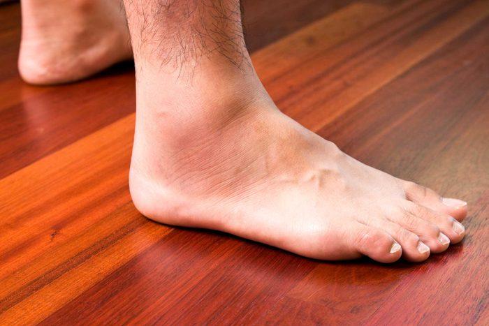 signes-manque-proteine-pieds-jambes-gonflent