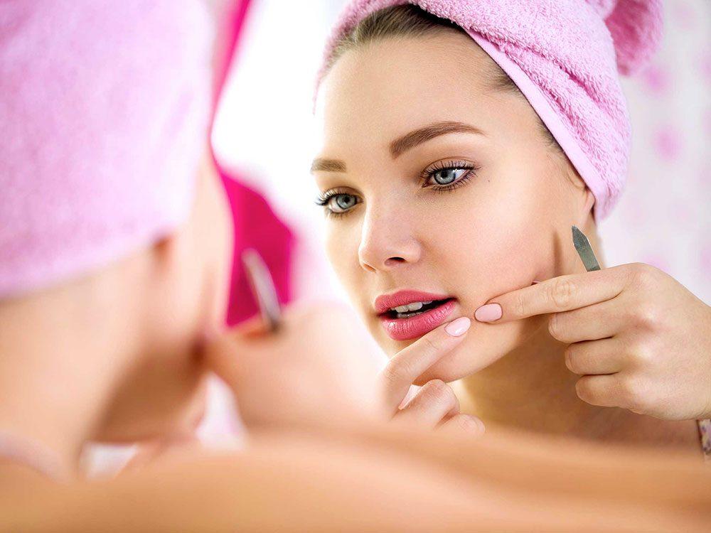 Vous faites de l'acné... de nouveau, à cause du stress!