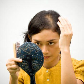 Problèmes de cheveux: les meilleurs remèdes naturels et suppléments