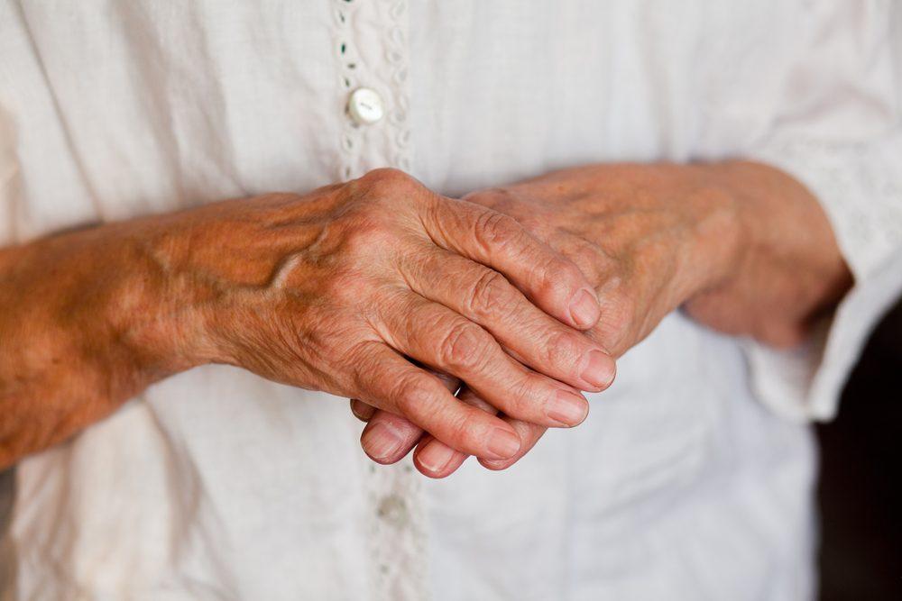 Douleurs liées à l'arthrite