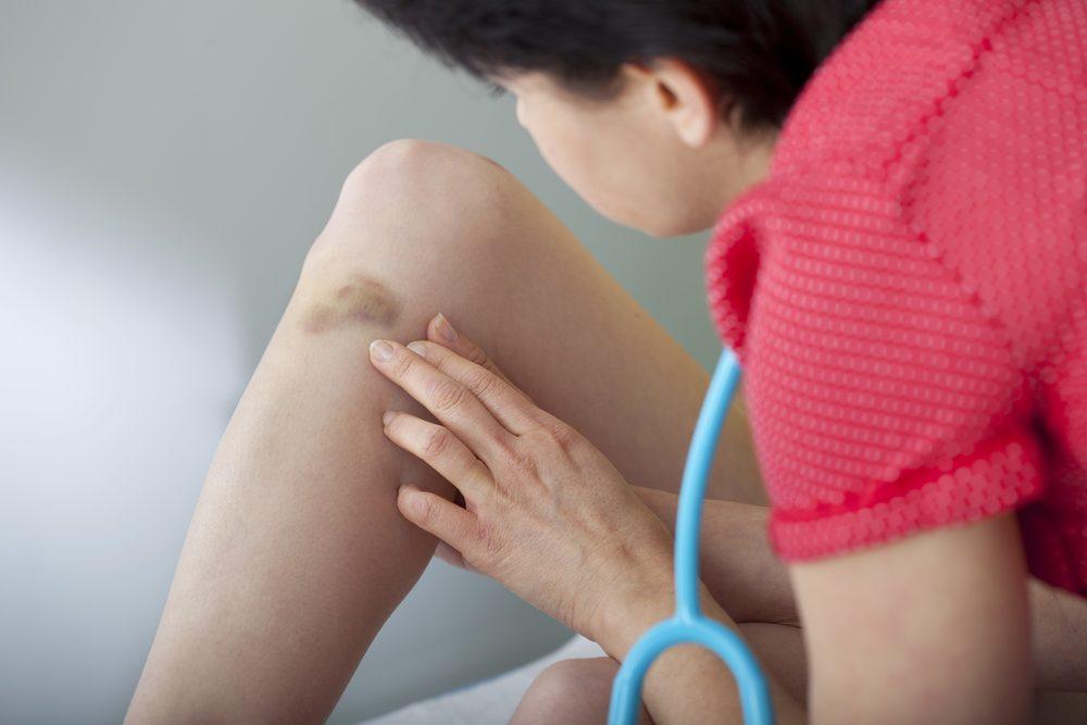 La présence accrue d'ecchymoses, parmi les symptômes et signes de la leucémie.