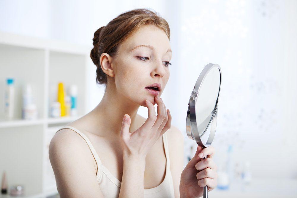 Vérifiez la formation de plaques sur votre corps ou pétéchies, symptômes de la leucémie.