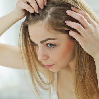 11 traitements naturels et ultra-efficaces pour lutter contre les pellicules