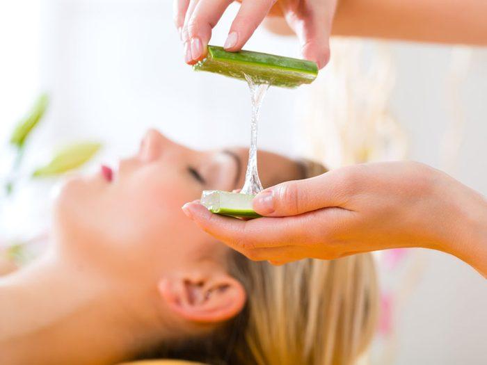 Combattre l'acné avec de l'aloe vera.