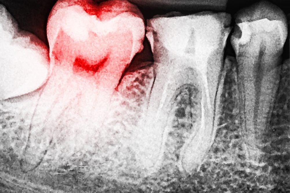 bébé dent cassée