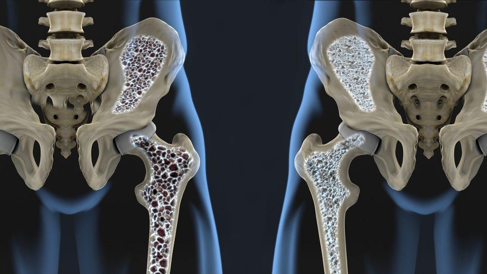 La vitamine D aide à lutter contre l'ostéoporose.