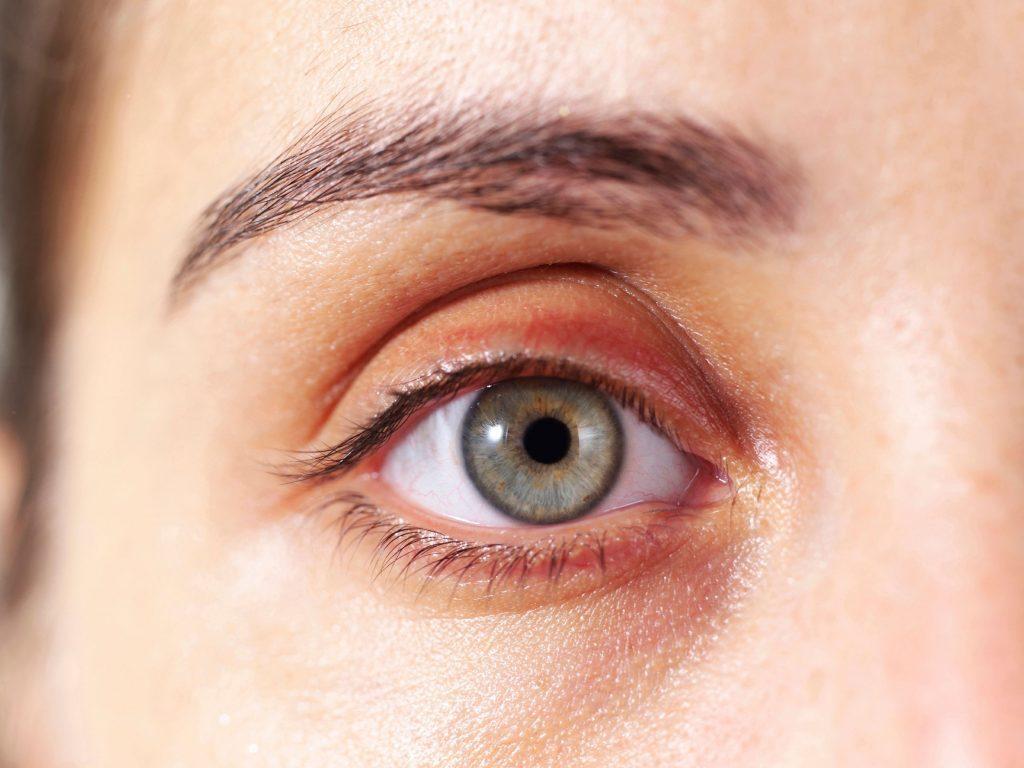 Les taches jaunes sur le visage peuvent indiquer une maladie cardiaque.