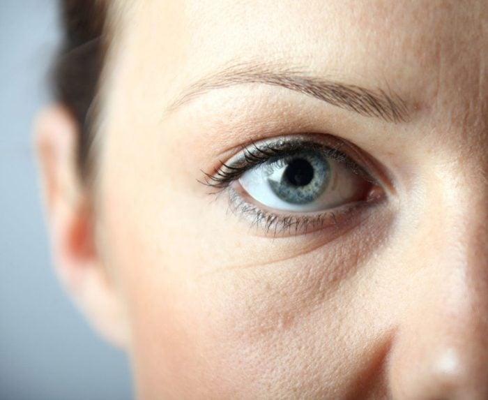 Des cernes et des yeux bouffis peuvent être le signe d'allergies chroniques.