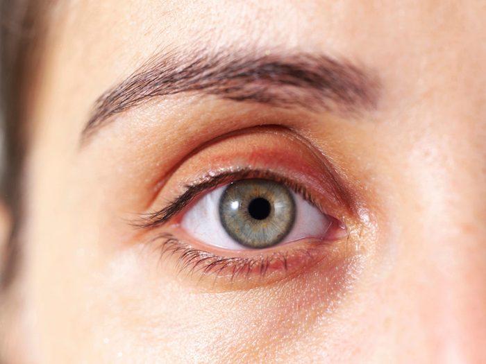 Des excroissances situées sur les paupières peuvent signaler une maladie cardiovasculaire.