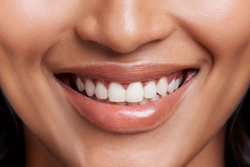 Arrêter de consommer du café pourrait blanchir vos dents.