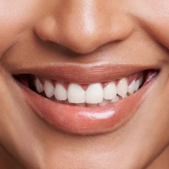 10 techniques pour blanchir vos dents naturellement à la maison
