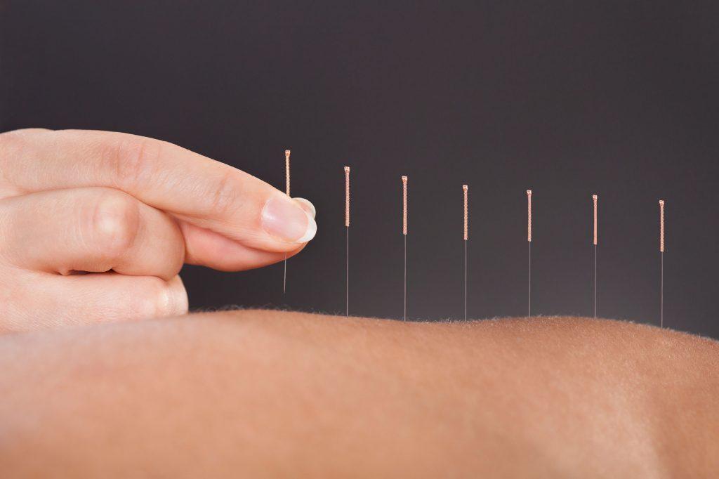 L'acupuncture peut être un remède efficace pour vos migraines.