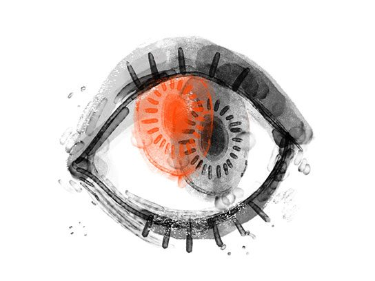 AVC: problème de vision