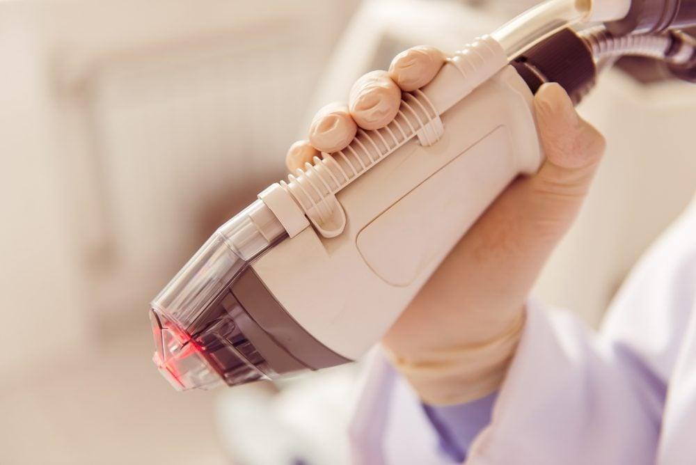 Si votre kératose pilaire s'accompagne d'une pigmentation rouge gênante, envisagez le laser à colorant pulsé