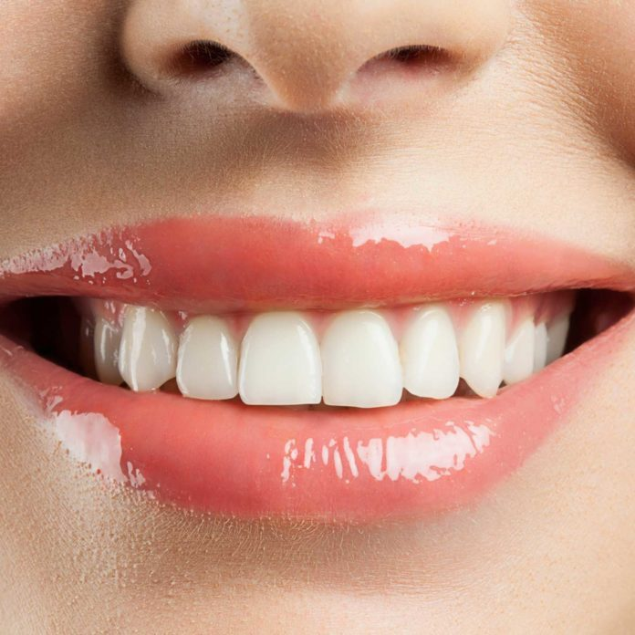 7 raisons pour lesquelles vos dents sont tachées