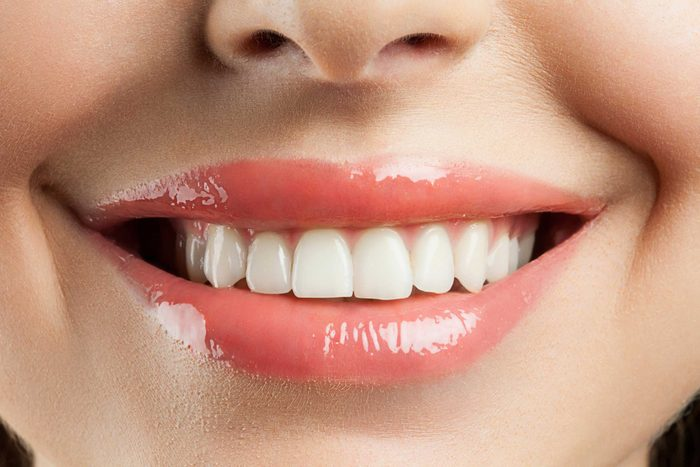 Dents tachées: le secret d'un sourire parfait