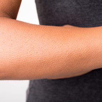 Kératose pilaire : 8 moyens d'en finir avec les petits boutons rouges