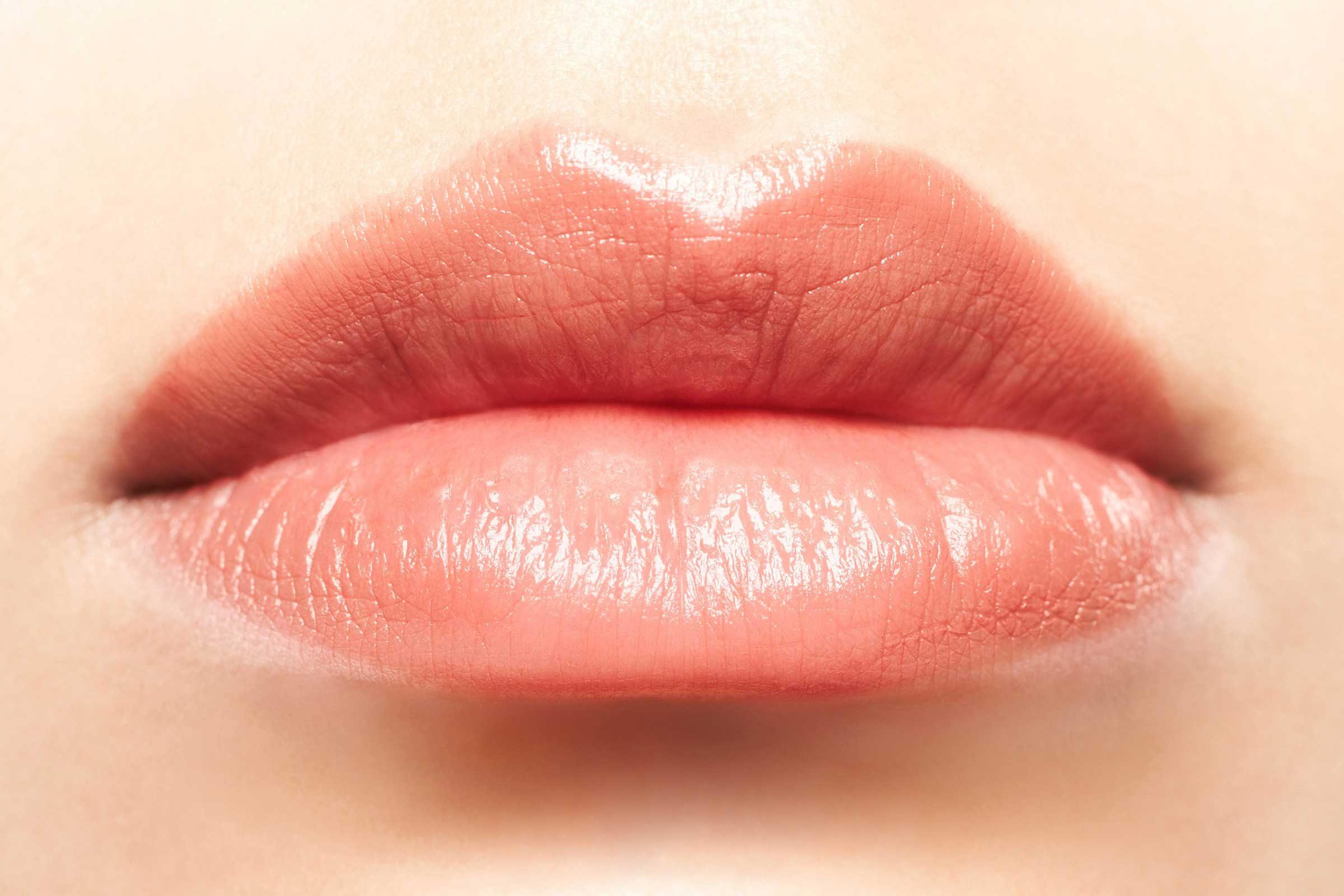 Certains de des produits de comblement à l'acide hyaluronique donnent du volume repulpant aux lèvres.
