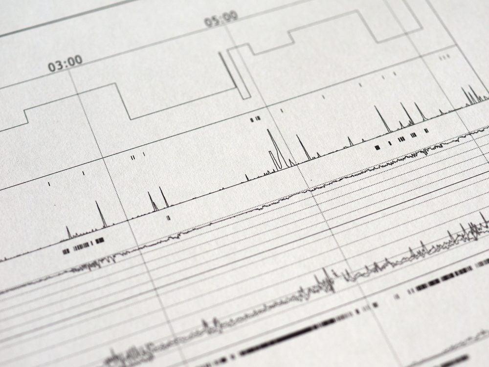 Faites des tests de dépistage pour savoir si vous avez des troubles du sommeil comme l'apnée.