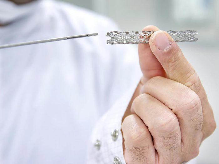 Procédure médicale risquée: la pose d'un stent est inappropriée une fois sur 10.