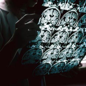 Cette recherche pourrait changer la vie des patients souffrant d'Alzheimer