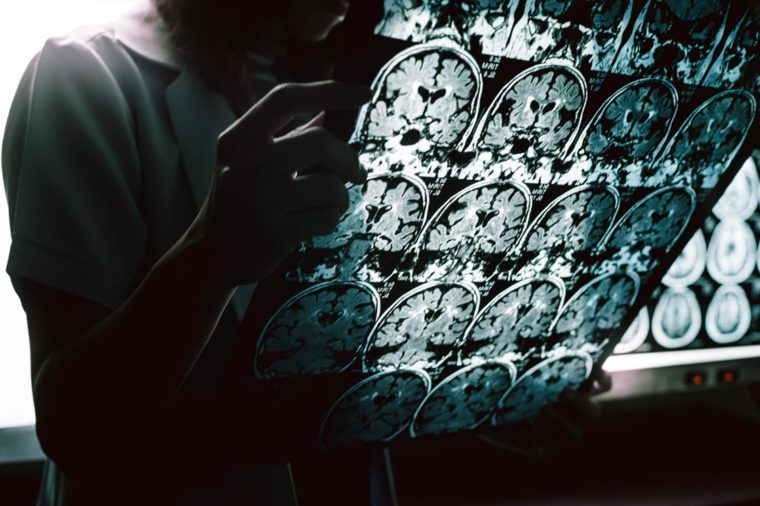 grâce à la recherche La plus révolutionnaire jamais entreprise, les médecins pourraient bien parvenir à restaurer pour de bon la mémoire des patients.