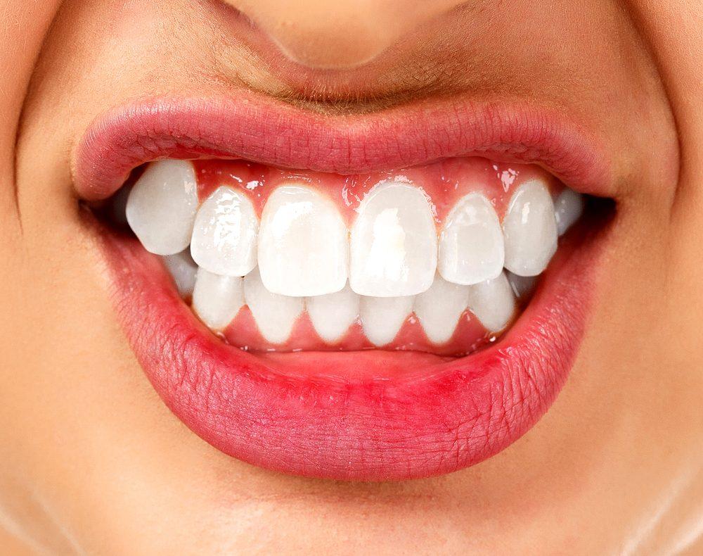 De nombreuses personnes grincent des dents durant leur sommeil. Ce trouble est également appelé « bruxisme ».