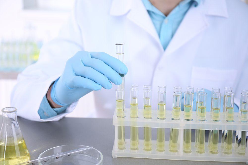 Si vous êtes à risque, vous passerez un examen pour détecter les signes du cancer. Si cet examen s'avère suspect, votre médecin vous dirigera vers un urologue pour des tests plus pointus.