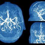 6 signes inquiétants d'anévrisme cérébral à connaître absolument