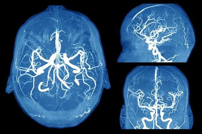 L'anévrisme touche le cerveau.
