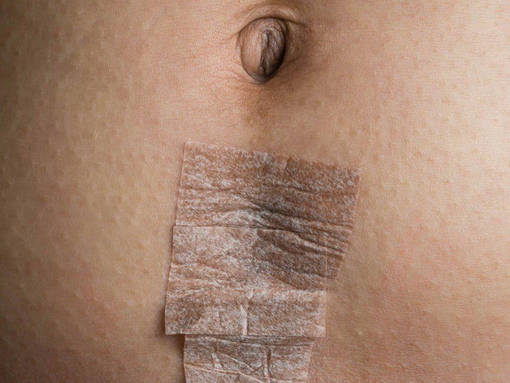 L'absence de menstruation peut être causée par une blessure.