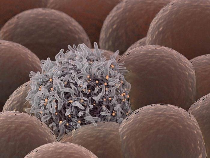 L'absence de menstruation peut être causée pas une tumeur à l'hypophyse