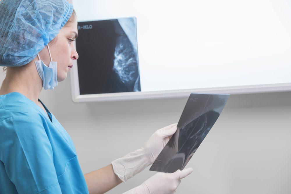 Cancer du sein : Le traitement optimal dépend de la taille de la tumeur