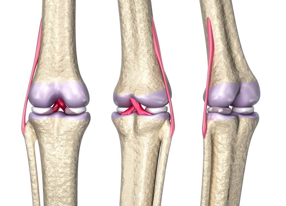 Une douleur au genou peut être due à une blessure aux ligaments.