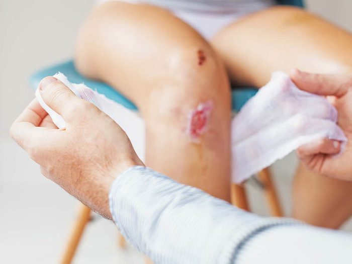 Infection : prenez garde aux blessures profondes.