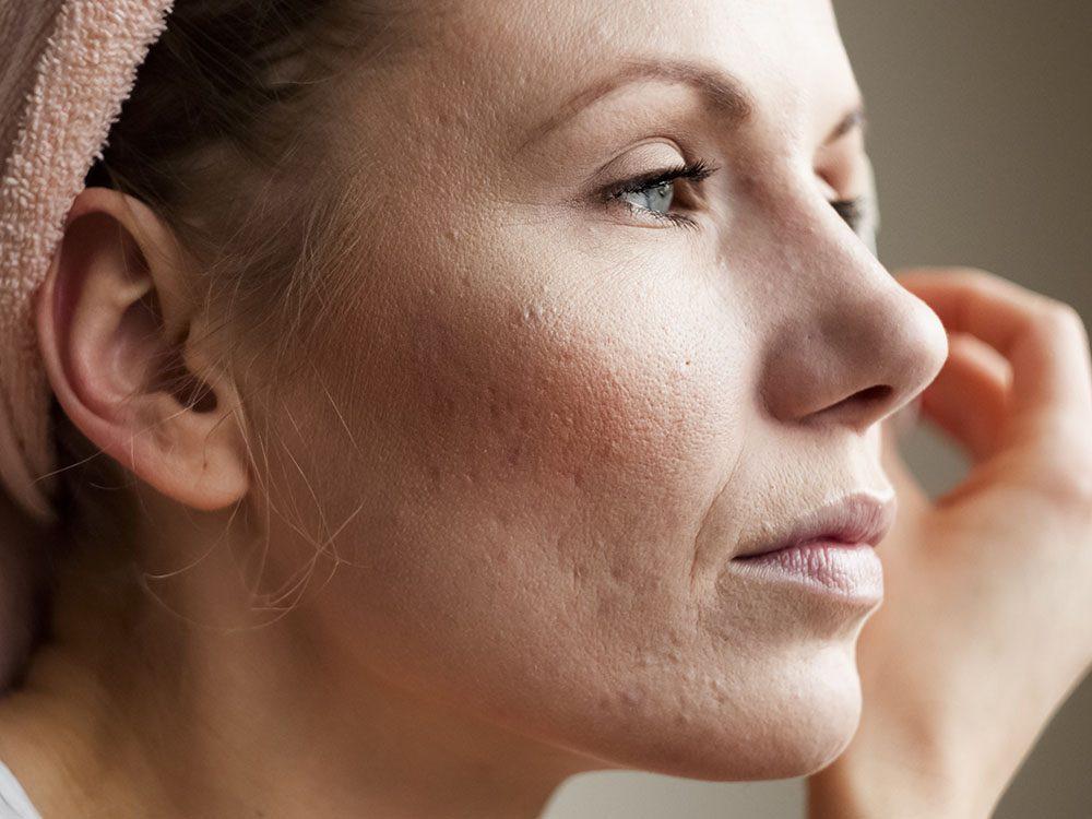Les bienfaits du curcuma diminuent les cicatrices d'acné.