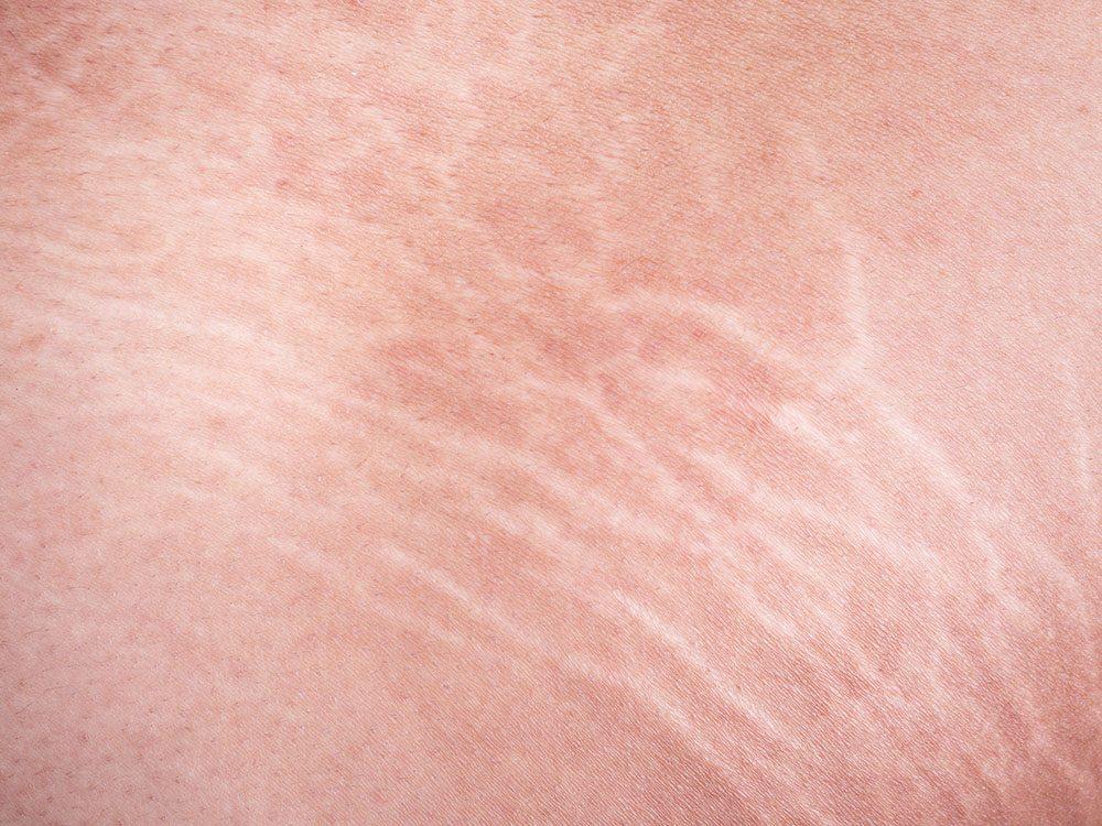 Les bienfaits du curcuma diminuent l'apparence des vergetures.