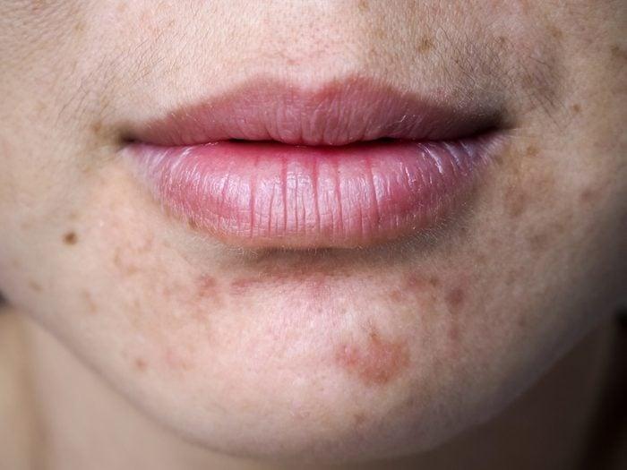 L'acné qui revient