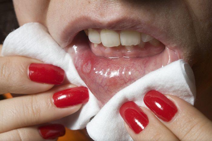 Ulcère buccal près des dents ou sur les gencives
