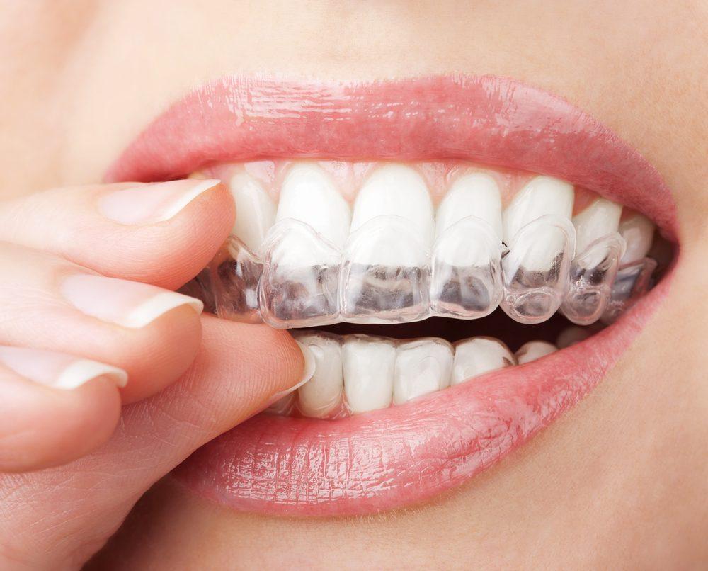 Le blanchiment de dents peut également causer une douleur dentaire