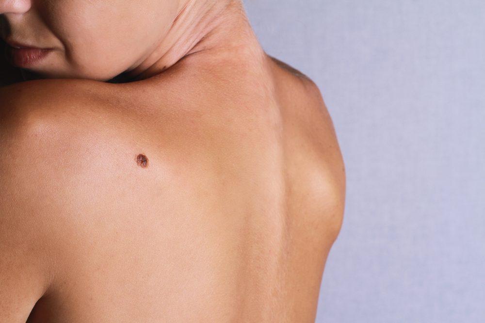 Une nouvelle tache est apparue sur votre peau