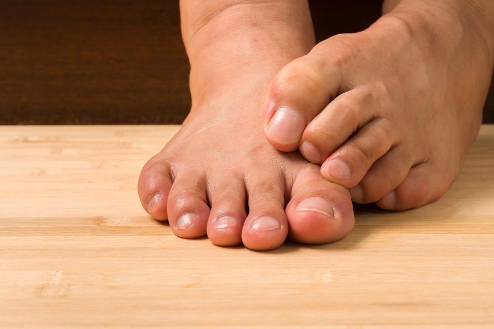 Vos pieds vous démangent à vous rendre dingueé