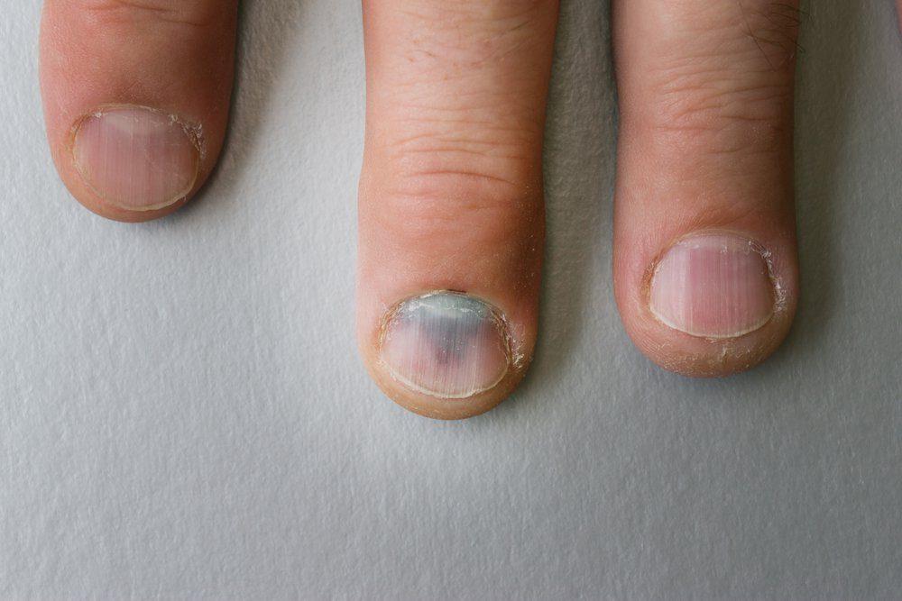 Vous remarquez des stries noires sur un ongle