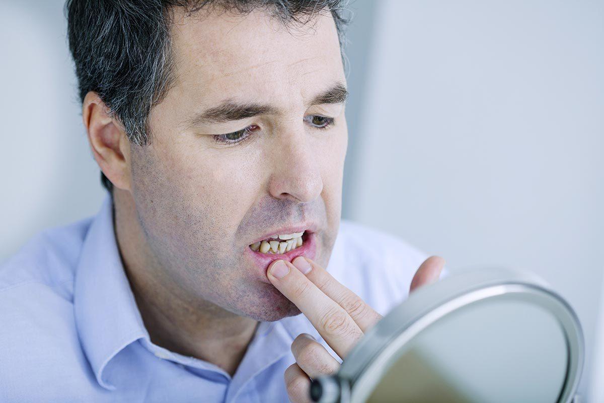 Le de mal de dents peut être du à des gencives rétractées.