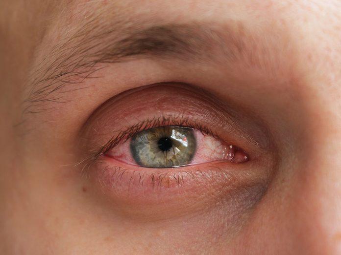 La conjonctivite fait partie des maladies des yeux que vous devriez connaître.