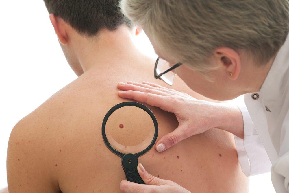 Des changements visibles à la peau