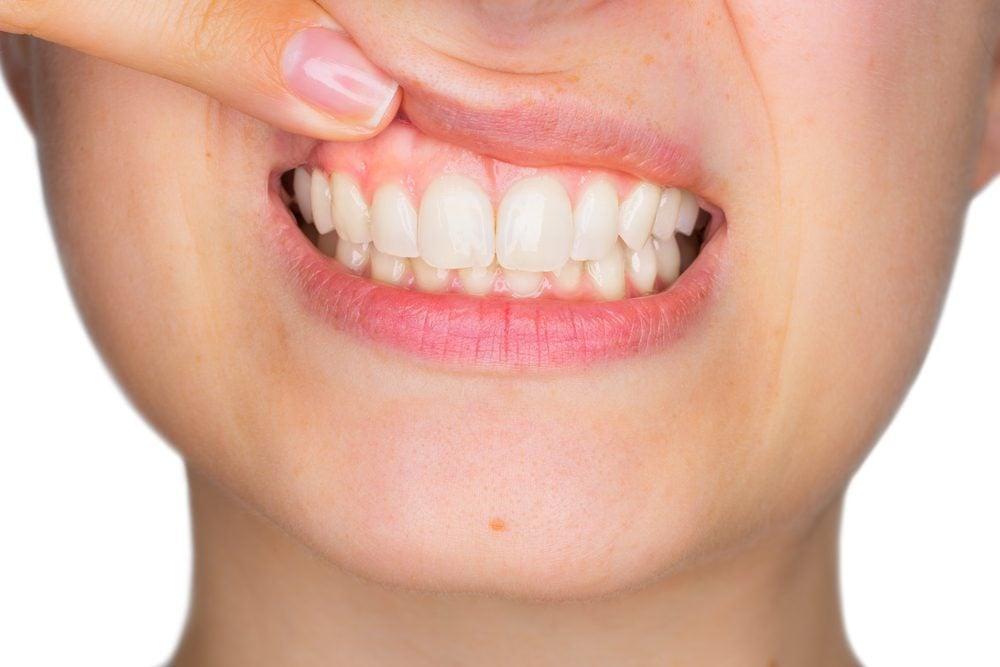 Comment procéder vous-même à un auto-examen du cancer de la bouche?